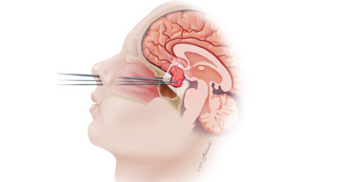 Endoscopic Trans sphenoidal Pituitary surgery in Hauz Khas   ********94    Endoscopic Trans sphenoidal Pituitary surgery in Saket,Endoscopic Trans  sphenoidal Pituitary surgery in Malviya Nagar,Endoscopic Trans sphenoidal  Pituitary surgery in Pushp Vihar ...